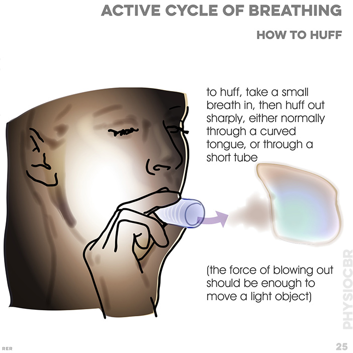25. Active cycle of breathing techniques (ACBT). To huff, take small breah in and huff out sharply, either through curved tongue or short tube (enough to move a light object)